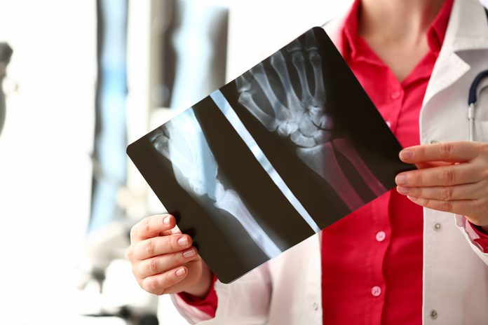 x-rays and arthritis