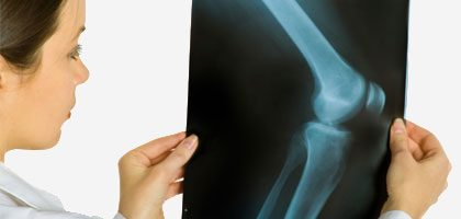 How Osteoarthritis Affects Your Most Vulnerable Joints