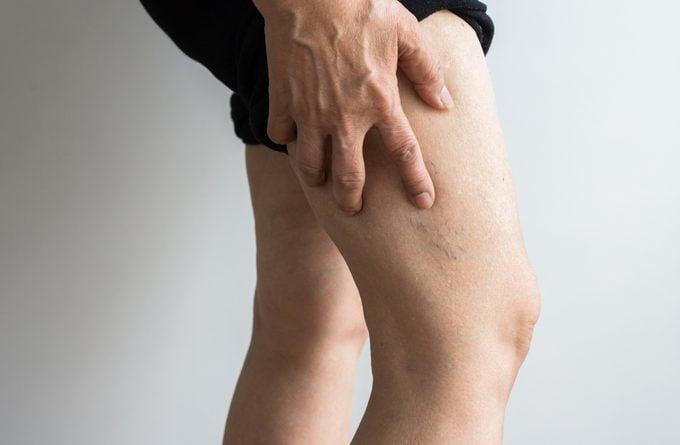 veins on mature woman's leg