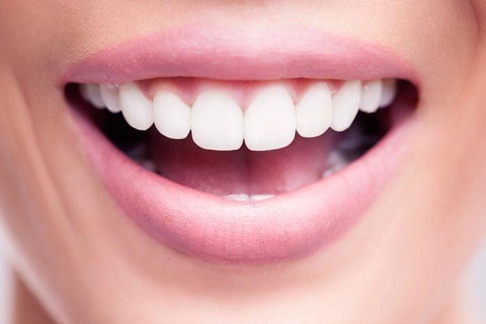 woman's perfect teeth