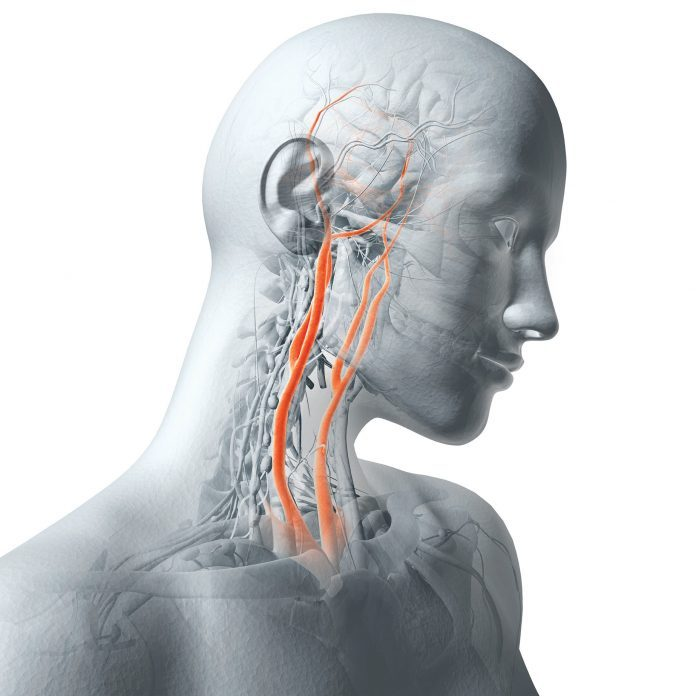 Carotid Artery Surgery: Could It Give You a Stroke?