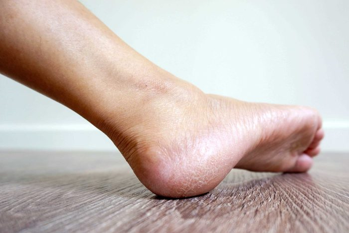 foot with dry skin on the heel