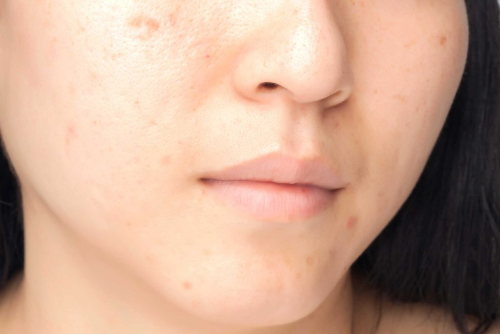 Dark spots on a woman's face.