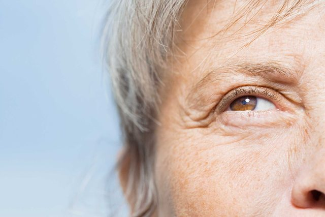 Closeup of wrinkles around the eye.