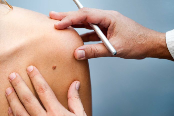 Doctor examining a mole on a person's shoulder.
