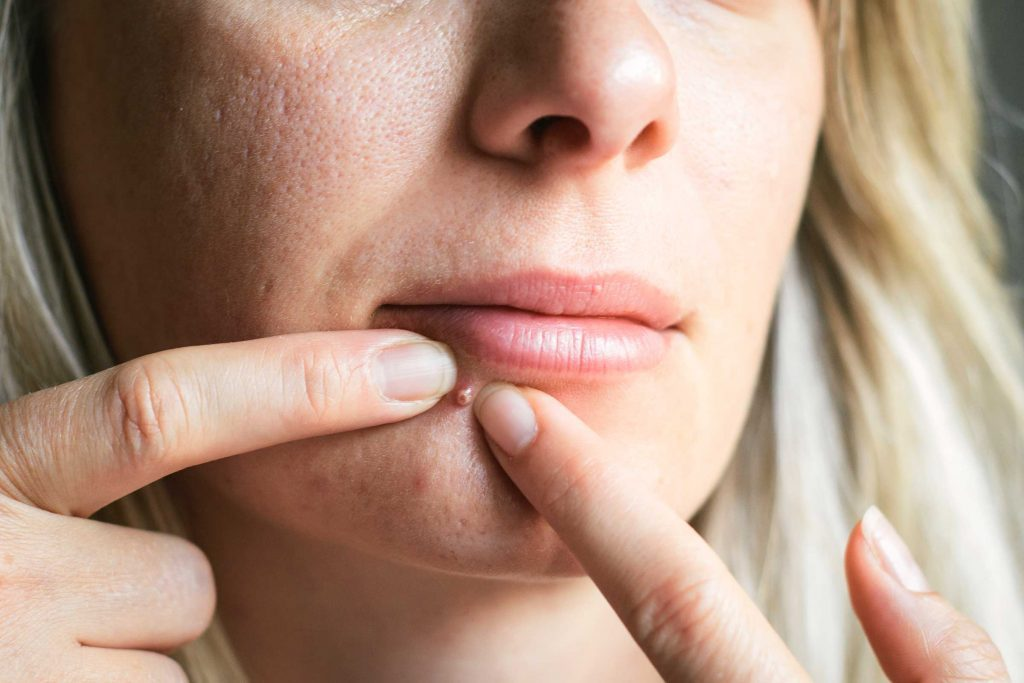 The Worst Skin Care Advice Dermatologists Hear | The Healthy
