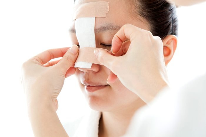 patient getting nose bandaged