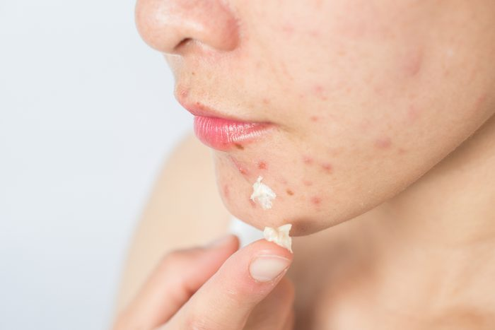 woman spot treating pimples on face