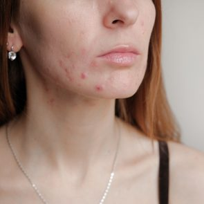 cropped photo of woman with acne on face