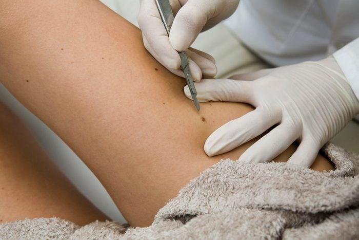 dermatologist removing a mole close up