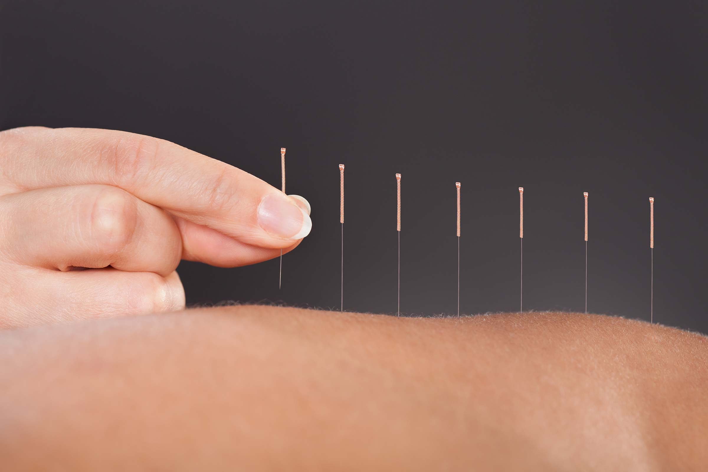 What_Is_Acupuncture
