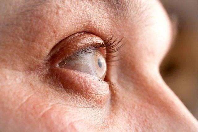 blurry vision, eye closeup
