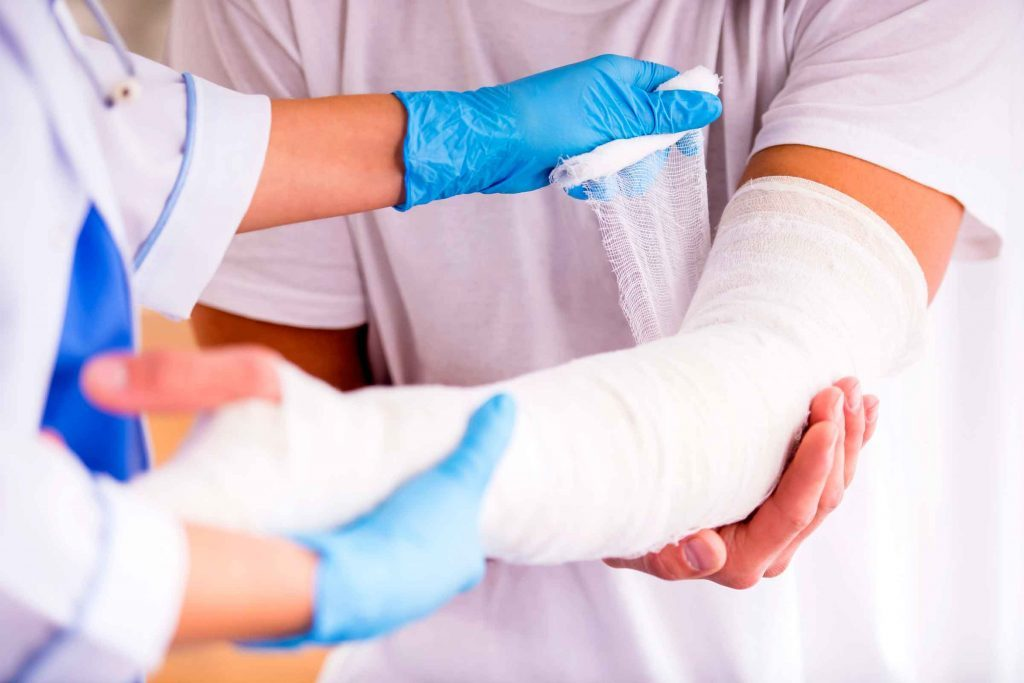 close up of a doctor wrapping a cast on a person's arm