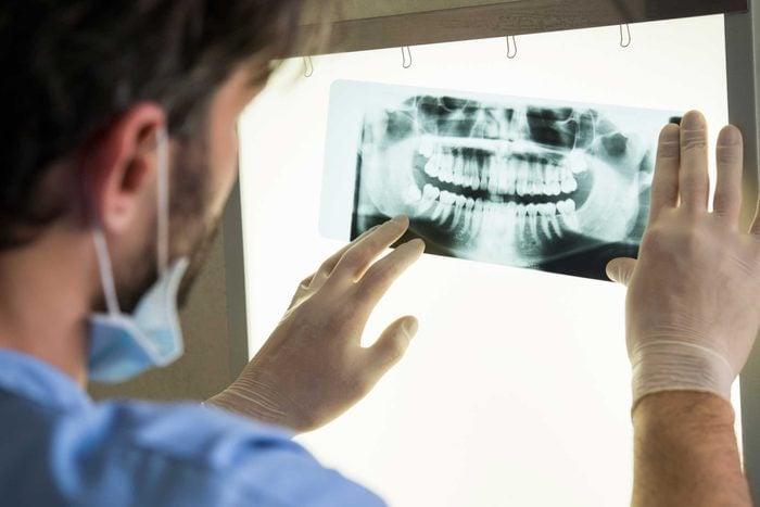 man looking at dental X-ray