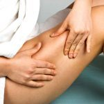 8 Things Dermatologists Wish Women Knew About Cellulite