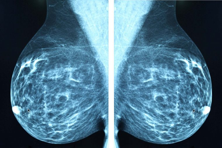 02-did-abnormal-mammogram-questions-BluePlanetEarth