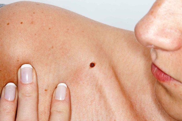 woman looking at a mole on her shoulder