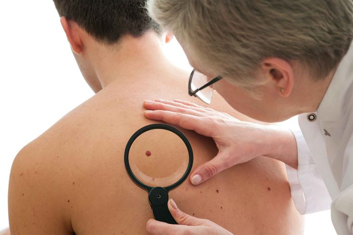 male doctor looking at mole with magnifying glass on man's back