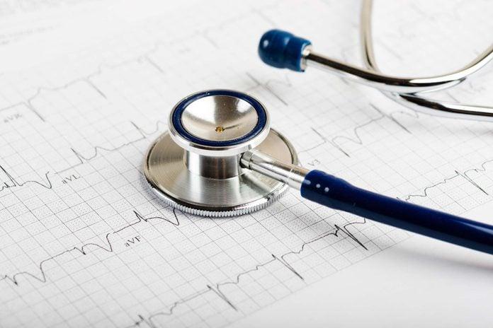 stethoscope on a cardiac rhythm print out