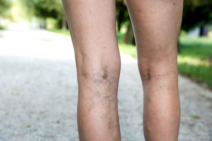 07-high-heels-varicose-veins