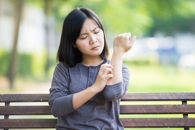 Woman sitting on a park bench scratching her arm.