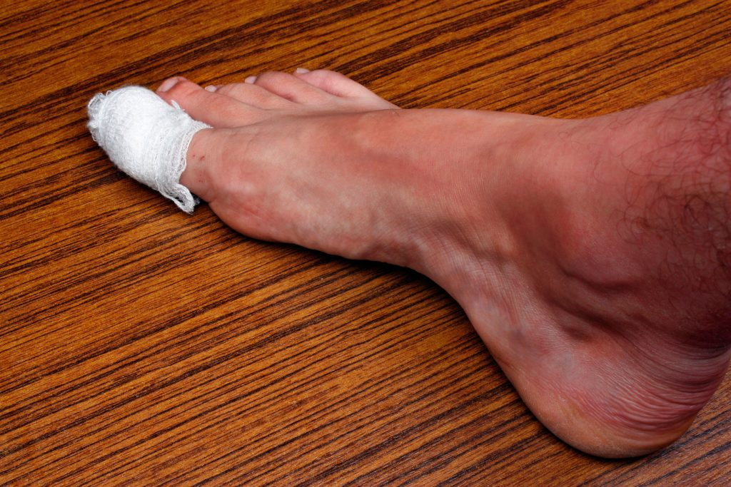 foot with a bandage on the big toe