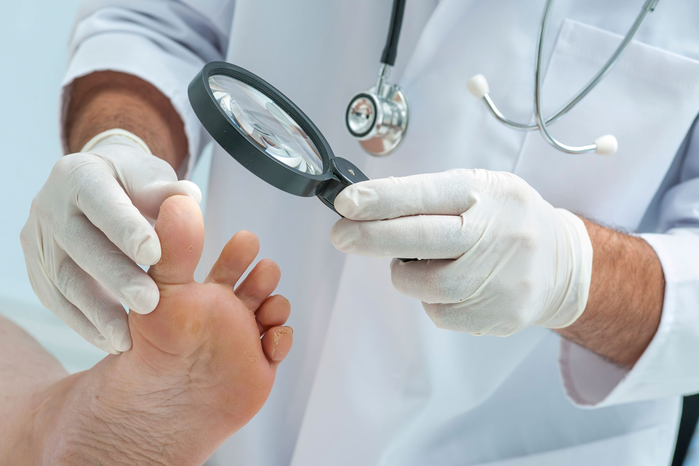Signs of Disease Your Feet Can Reveal | The Healthy