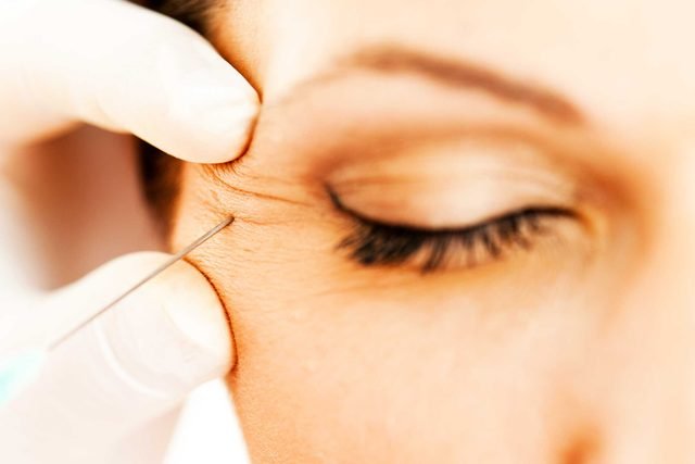 close up of a doctor inserting a needle into a woman's crows feet