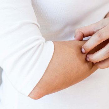 9 Things You Need to Know About Eczema (Especially If You Have It)