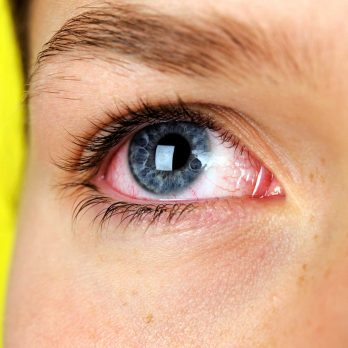 7 Silent Signs You Could Have Dry Eye Syndrome (And Why You Can't Ignore It)