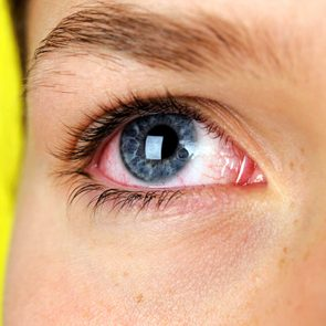 silent_signs_could_have_dry_eye_syndrome_why_can't_afford_ignore_it_redness