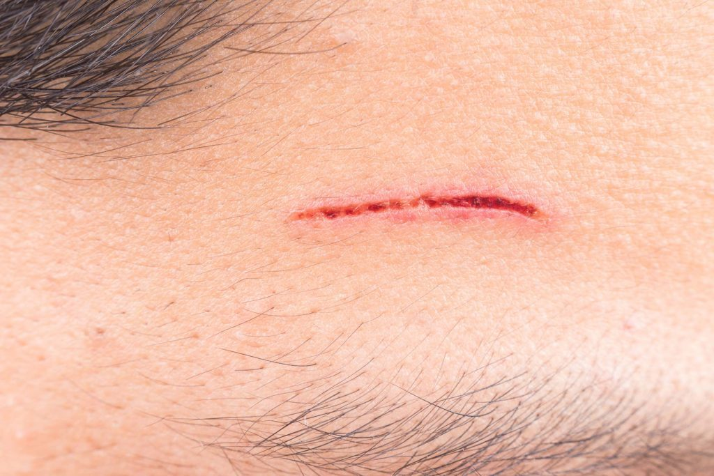 Is That Cut or Scrape Infected? Here the Signs | The Healthy