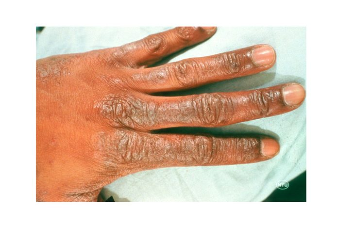 eczema on the back of the hand and fingers