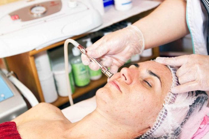esthetician or dermatologist microneedling woman's cheek