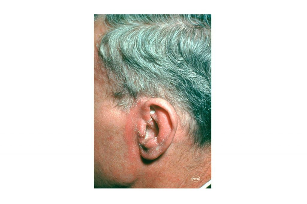 Seborrheic dermatitis on the ear