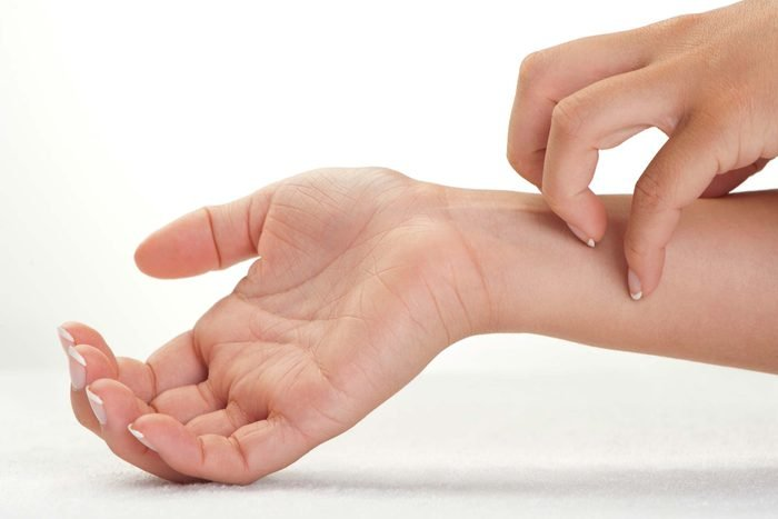 woman's hand itching her own wrist