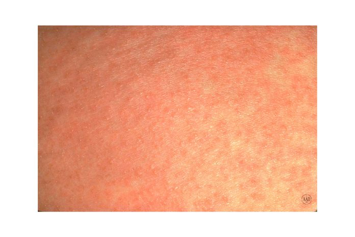 close up of heat rash bumps