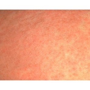 08-whats-that-rash-heat-rash