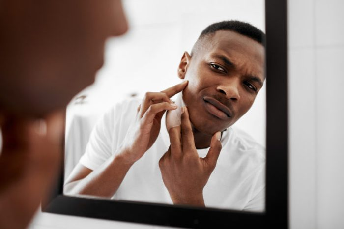 man popping pimple in mirror