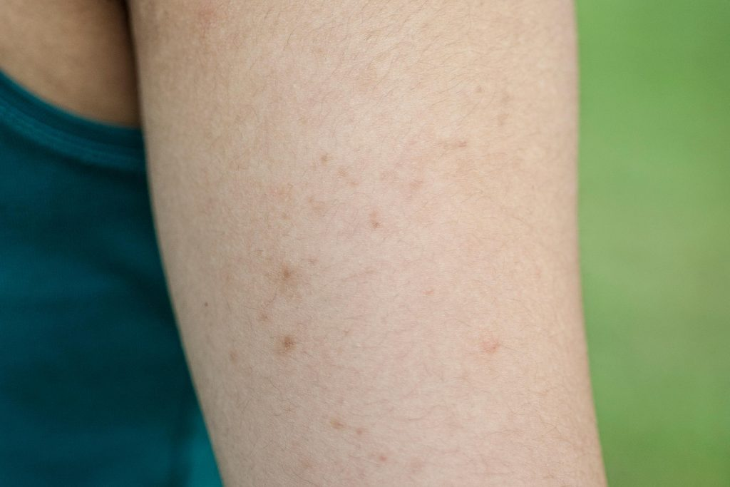 Bumps on someone's upper arm.
