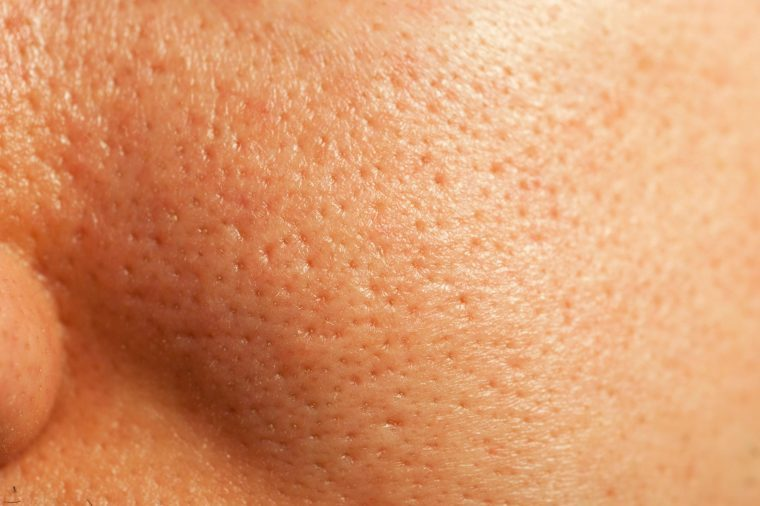 Myths And Truths About Large Pores | The Healthy