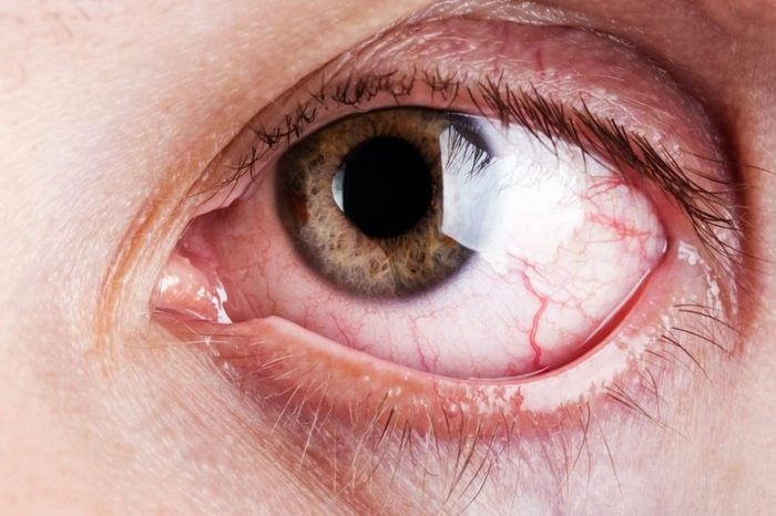Closeup image of a person's bloodshot eye.