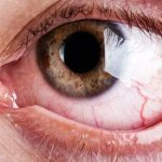 9 Reasons You Have Bloodshot Eyes—and How to Fix Them