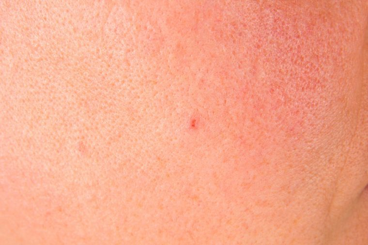 Close-up image of skin with large pores.
