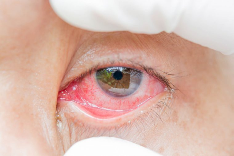 Person widening their bloodshot eye with their fingers.