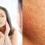 11 Myths and Truths About Large Pores that Will Change Your Face