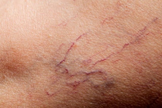 close up of spider veins, or telangiectasia, which are tiny thread-like veins
