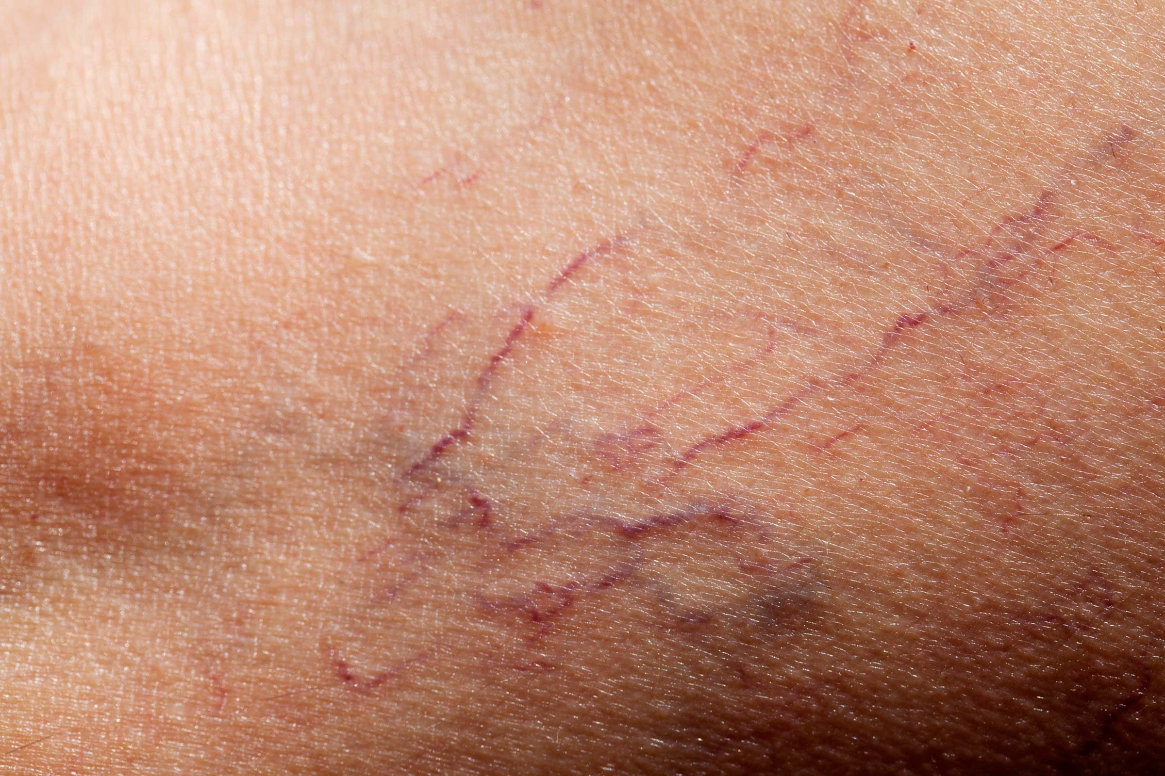 10 Ways to Erase Broken Capillaries—and Prevent Them Completely