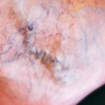 12 Things You Never Knew About Varicose Veins