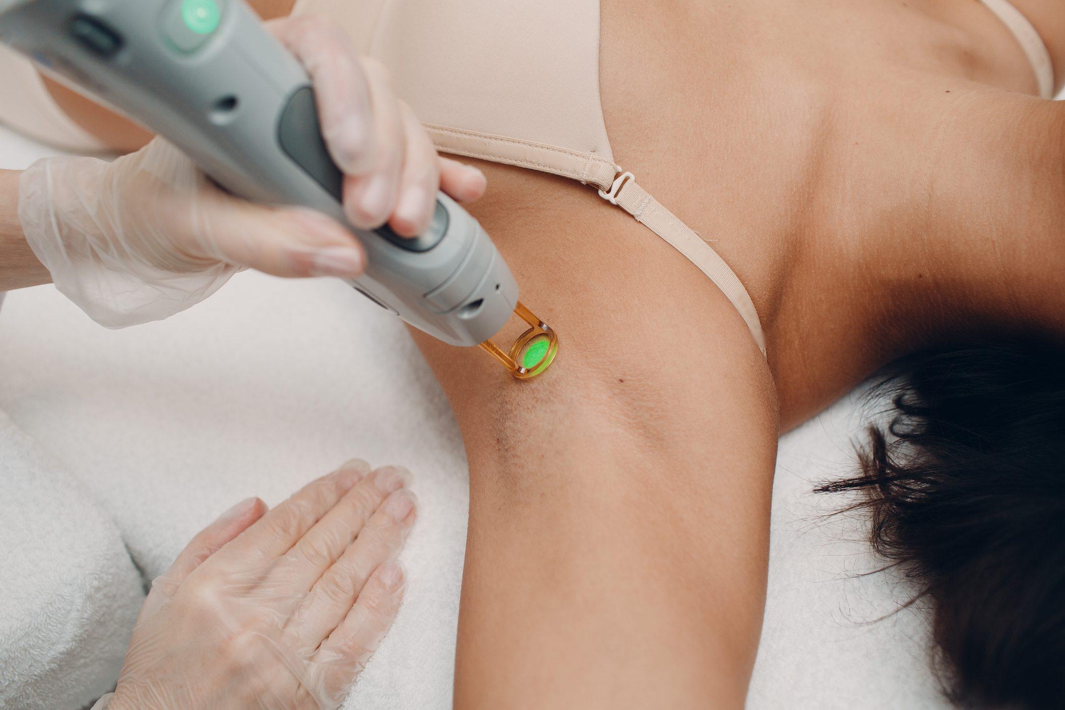 armpit laser hair removal close up